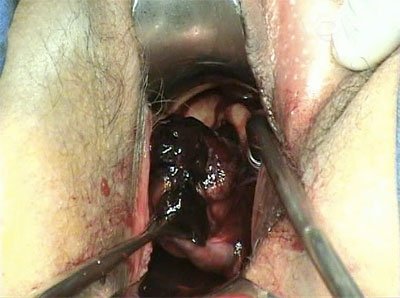 Anexectomie vaginala - Ramos, Jr. Case report summaries. Fertil Steril 2010.