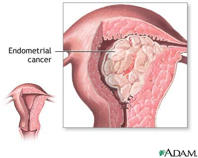 cancer endometrial