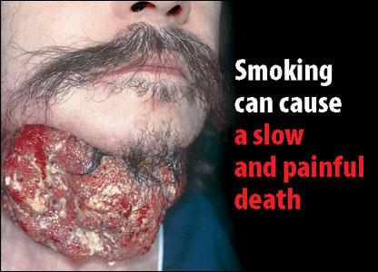 Fumatul cauzeaza cancer