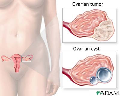 Poza: cancer ovarian
