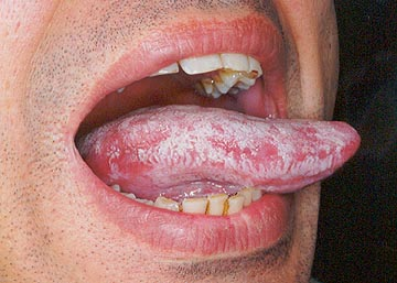 Thrush Tongue Yeast Infection