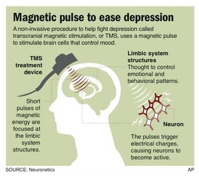 magnet pentru depresie
