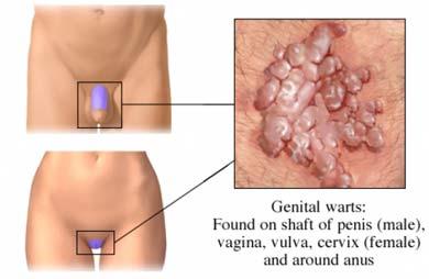 Poza: negi genitali