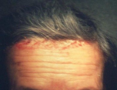 psoriazis localizat la cap