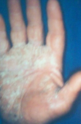 psoriazis palmar cu scuame groase
