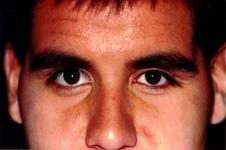 indepartarea unui ochi artificial