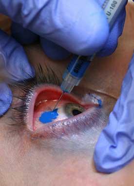 tatuaj pe ochi