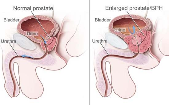 Alimente evitat prostata