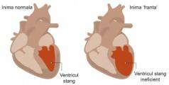 cardiomiopatia-de-stress-tako-tsubo