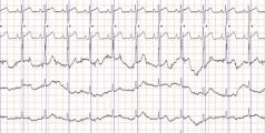 electrocardiograma-ekg