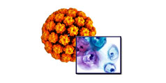 Infectia HPV - Factori de Risc, Teste HPV, Tratament, Vaccin Anti HPV