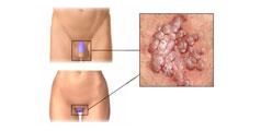 Negi Genitali - Simptome, Cauze, Diagnostic, Tratament + Poze