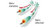3 Despre Celule Stem: Infertilitate, Scleroza Multipla, Siguranta