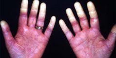 sindromul-reynaud-vasoconstrictie