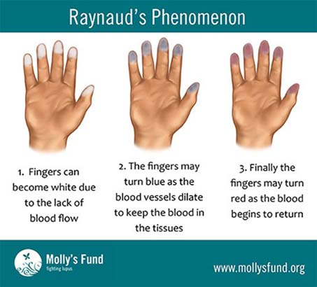 sindromul-reynaud