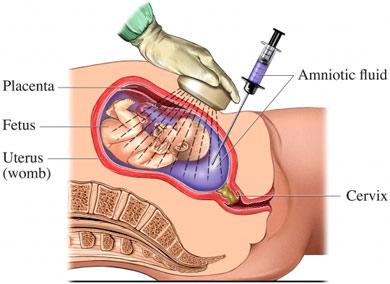 Amniocenteza - lichid amniotic