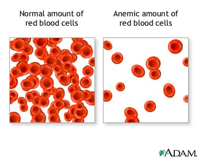 anemia in sarcina