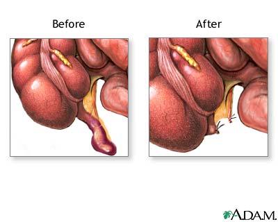 Apendicectomie in sarcina