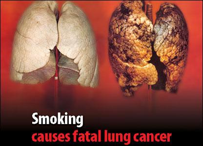 Fumatul produce cancer pulmonar