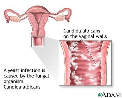 Poza: candidoza vaginala