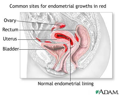 Poza: Endometrioza