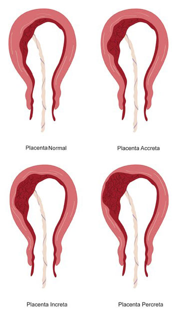 Placenta accreta, increta si percreta