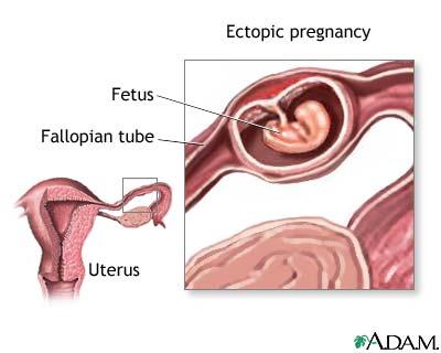 sarcina extrauterina / ectopica