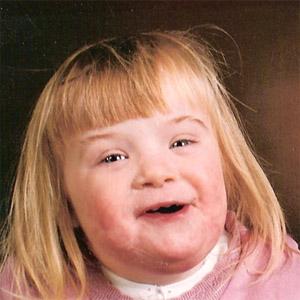 Poza: Sindromul Down - Trisomia 21