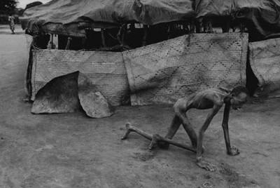 Sudan, 1993 - Victima intr-un centru de hranire