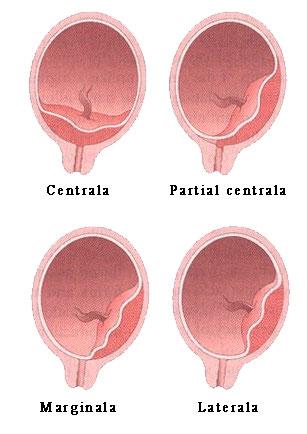 Tipuri de placenta praevia: centrala, partial centrala, marginala, laterala