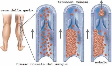 ce tratament se ia pentru tromboflebita