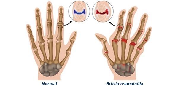 Artrita reumatoida juvenila pauciarticulara