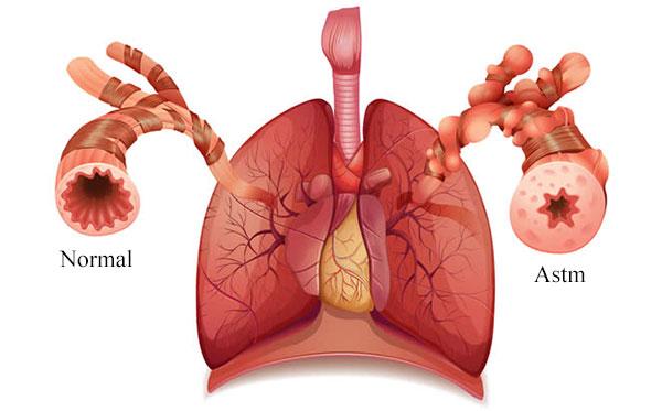 astm-bronsic