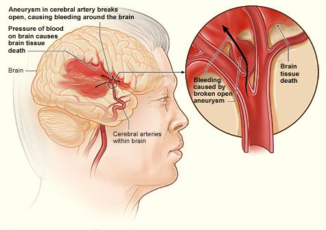 avc-hemoragic
