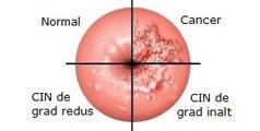 Colposcopia si Biopsia Cervicala