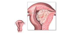 Cancer Endometrial - Cauze, Semne si Simptome, Diagnostic, Tratament