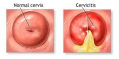 Cervicita - Simptome, Cauze, Factori de Risc, Complicatii, Diagnostic, Tratament