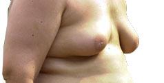 Barbatii Recurg Tot Mai Des La Operatiile Estetice Pentru Sani