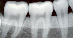 Radiografia Dentara In Sarcina