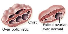 Tratamentul Infertilitatii In Sindromul Ovarelor Polichistice