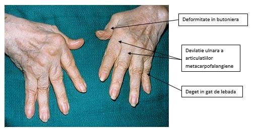 Artrita reumatoida cauze spirituale