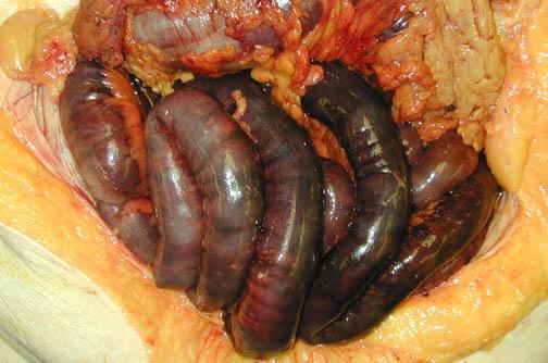 necroza-intestinala