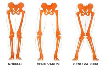 normal-genu-varum-valgum