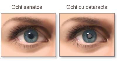 ochi-sanatos-cataracta