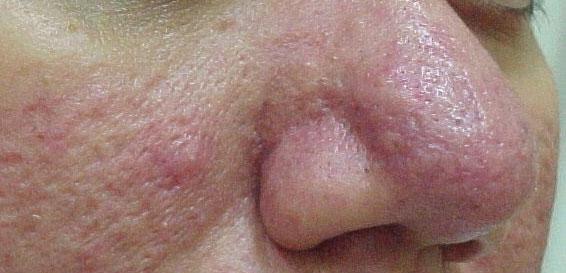 poliartrita reumatoida diagnostic mammogram for dense