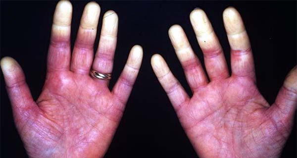 Mumie in tratamentul guta