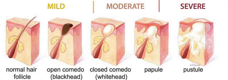 tipuri-acnee
