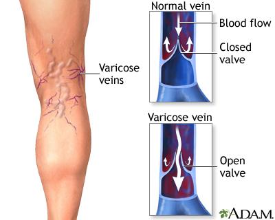 durere varice la nivelul coapsei superioare